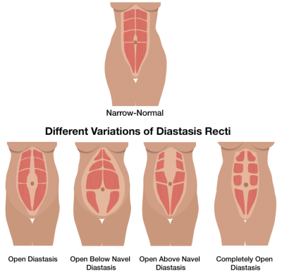 diastasis_recti_illustration3 (1)